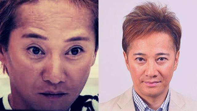 中居正広がハゲ治療成功でカツラ脱却?髪の毛の変化を画像で経年比較!