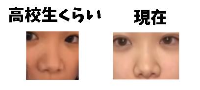 きりまるの鼻は?整形前とされる写真と画像比較!